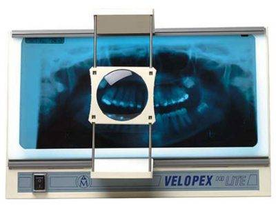 Velopex Röntgenfilmbetrachter